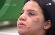 في اليوم العالمي لمحاربة العنف ضد النساء ..2M تقدم نصائح للمغربيات :هكذا تخفين آثار التعنيف سيدتي