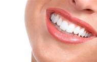 هذه 8 وسائل طبيعية للحفاظ على بياض ولمعان الأسنان طبيعياً