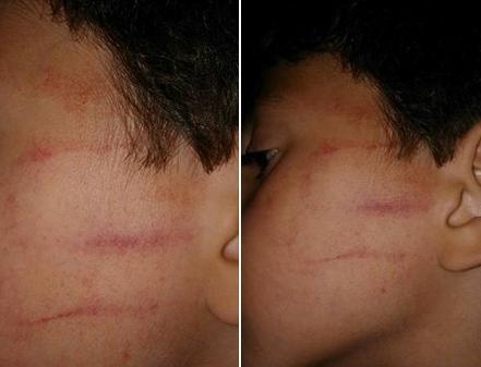 أستاذة بطنجة تدشن الموسم الدراسي بتشويه وجه تلميذ بعد أن صفعته بوحشية