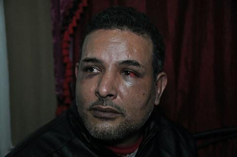 صور و فيديو | مراكشي يتهم شرطي بتعنيفه بشكل رهيب و يطالب بتدخل الحموشي