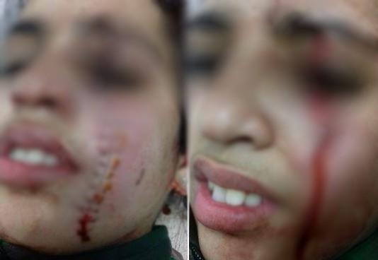 تلميذة تعتدي بـ'زيزوار' على زميلتها بإعدادية في القنيطرة بعد صراع حول كسب قلب مراهق