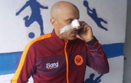 صور   لاعب تونسي يعتدي بالضرب على مدرب نهضة بركان !