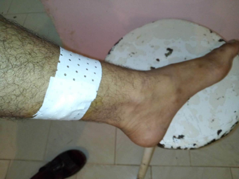 وزارة الصحة توضح سُبل الوقاية وتُحذر من الطرق التقليدية لعلاج لسعات العقارب