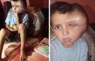 حالة إنسانية/طفل فقير بشيشاوة في حاجة لمساعدة المغاربة للاستشفاء