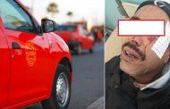تفاصيل اعتداء بشع 'شرمل' سائق تاكسي بوجدة و نقابة تصفه بـ
