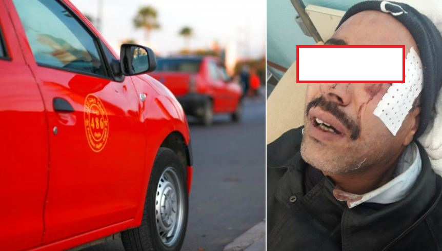 """تفاصيل اعتداء بشع 'شرمل' سائق تاكسي بوجدة و نقابة تصفه بـ""""الإرهابي"""" !"""