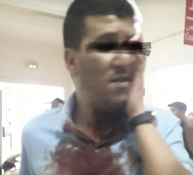 أمن القنيطرة يتفاعل بجدية مع تدوينة فيسبوكية ويوقف متورط في الإعتداء على شاب بالسكاكين وسط المدينة