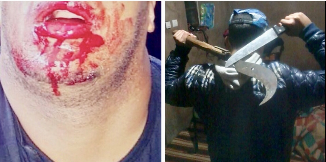 مُجرم خطير يشرمل وجه شرطي بسيف بالقنيطرة والمواطنون يطالبون الحموشي بإطلاق الرصاص