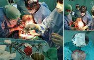 فريق جراحي بمستشفى الرشيدية يستئصل ورماً ضخماً من بطن سيدة بلغ وزنه 14 كلغ !